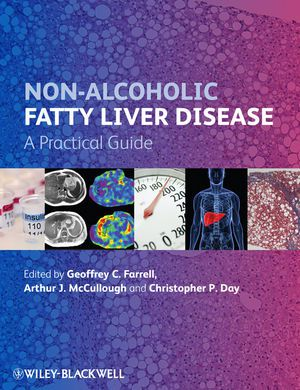 Livro Non-Alcoholic Fatty Liver Disease: A Practical Guide