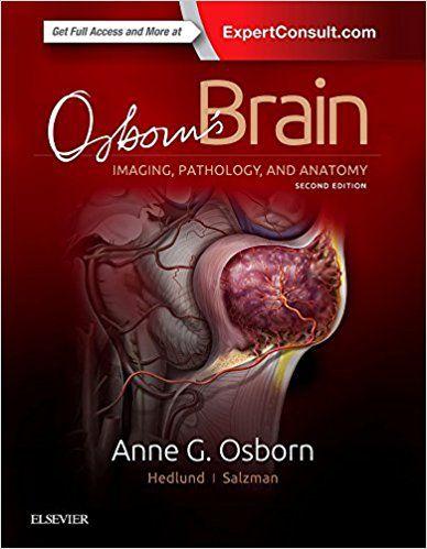Livro Osborn's Brain