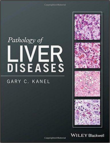 Livro Pathology Of Liver Diseases
