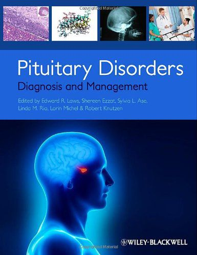 Livro Pituitary Disorders: Diagnosis and Management