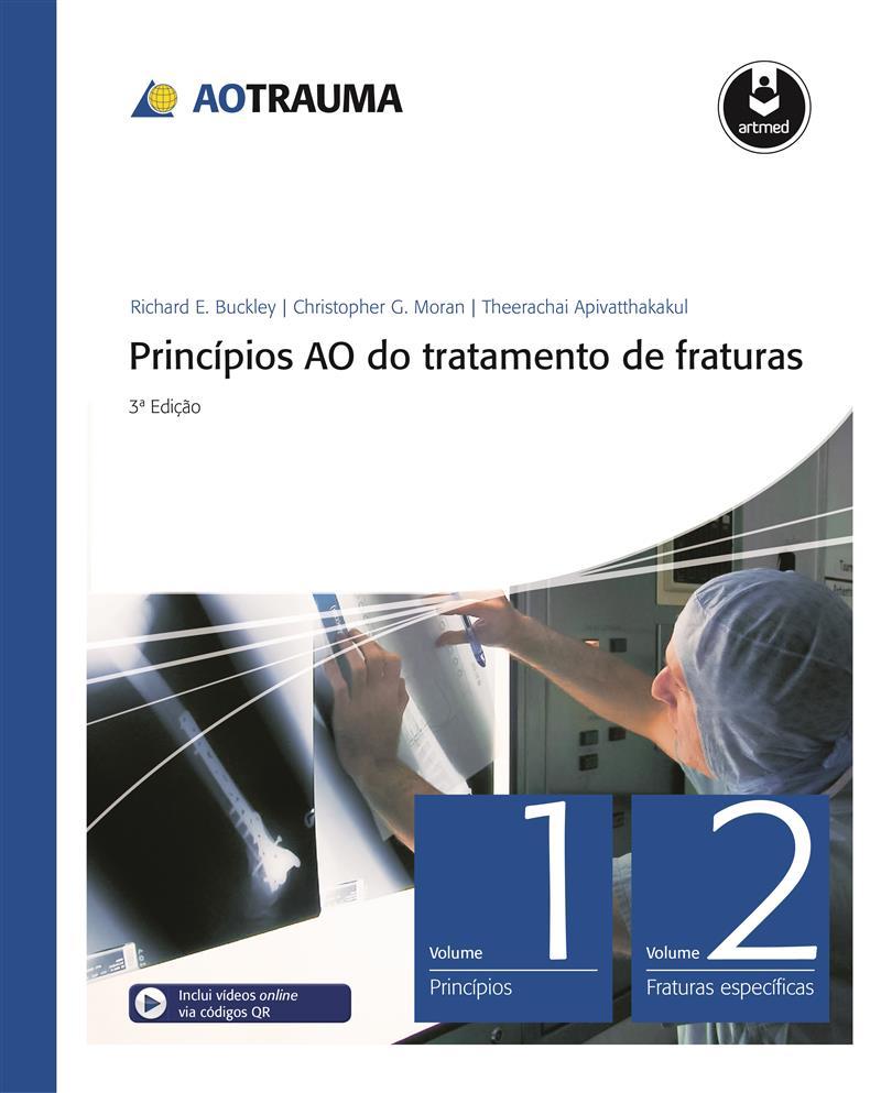Princípios AO do Tratamento de Fraturas 2 Vols, Inclui DVD-ROM em inglês, Rüedi