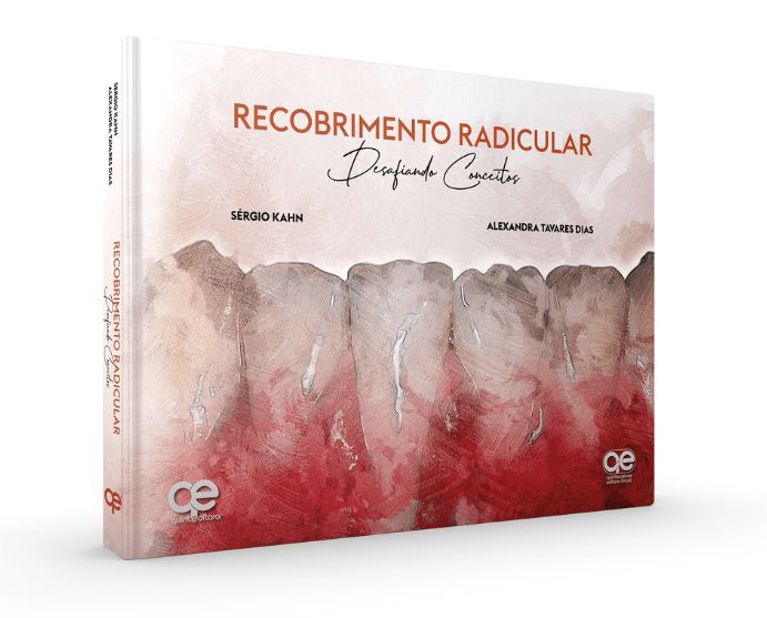 Livro Recobrimento Radicular Desafiando Conceitos