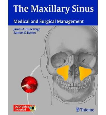 Livro The Maxillary Sinus: Medical and Surgical Management