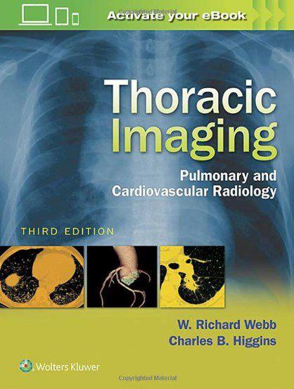 Livro Thoracic Imaging