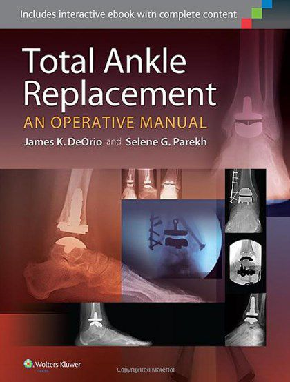 Livro Total Ankle Replacement: An Operative Manual