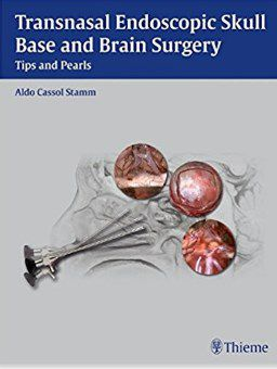 Livro Transnasal Endoscopic Skull Base and Brain Surgery: Tips and Pearls